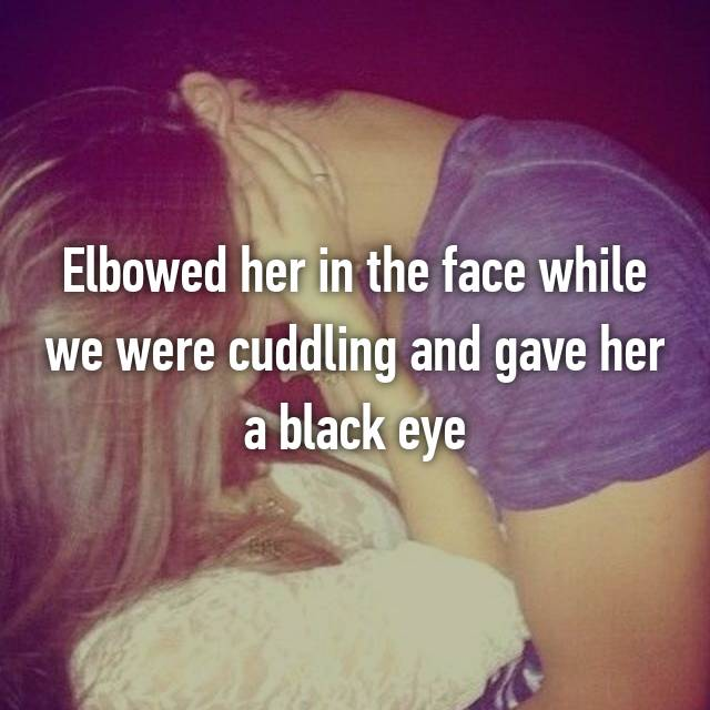 Elbowed her in the face while we were cuddling and gave her a black eye