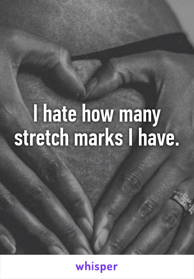 I hate how many stretch marks I have.