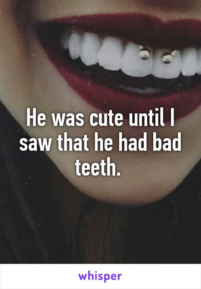 He was cute until I saw that he had bad teeth.