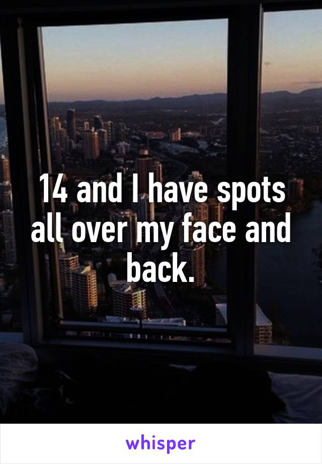 14 and I have spots all over my face and back.