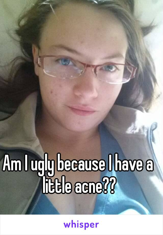 Am I ugly because I have a little acne??