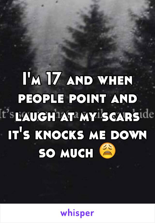 I'm 17 and when people point and laugh at my scars it's knocks me down so much 😩