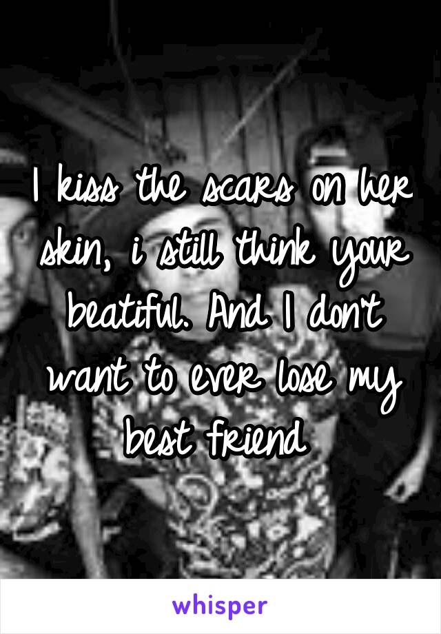 I kiss the scars on her skin, i still think your beatiful. And I don't want to ever lose my best friend