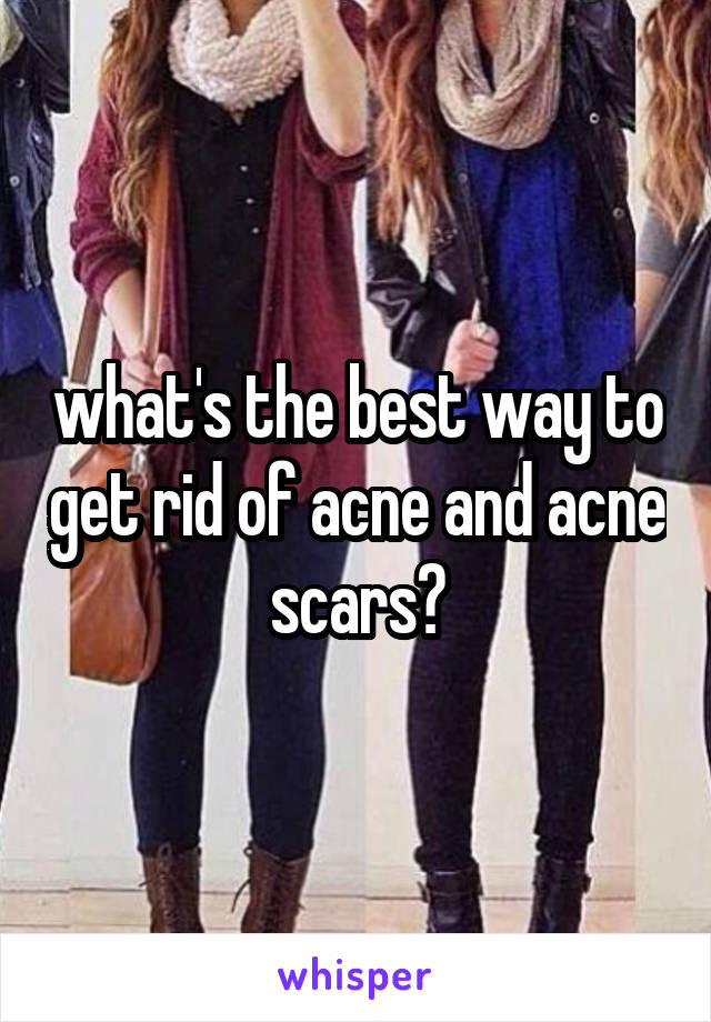 what's the best way to get rid of acne and acne scars?