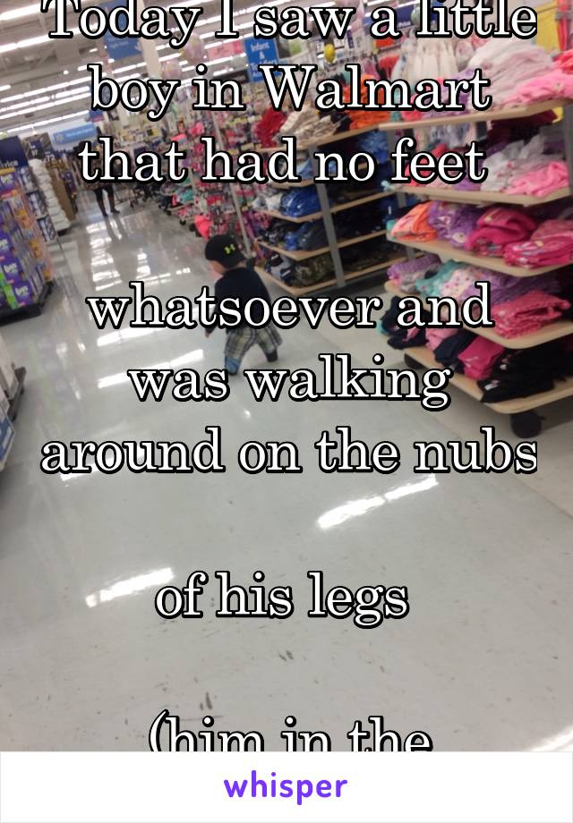 Today I saw a little boy in Walmart that had no feet   whatsoever and was walking around on the nubs  of his legs   (him in the picture)
