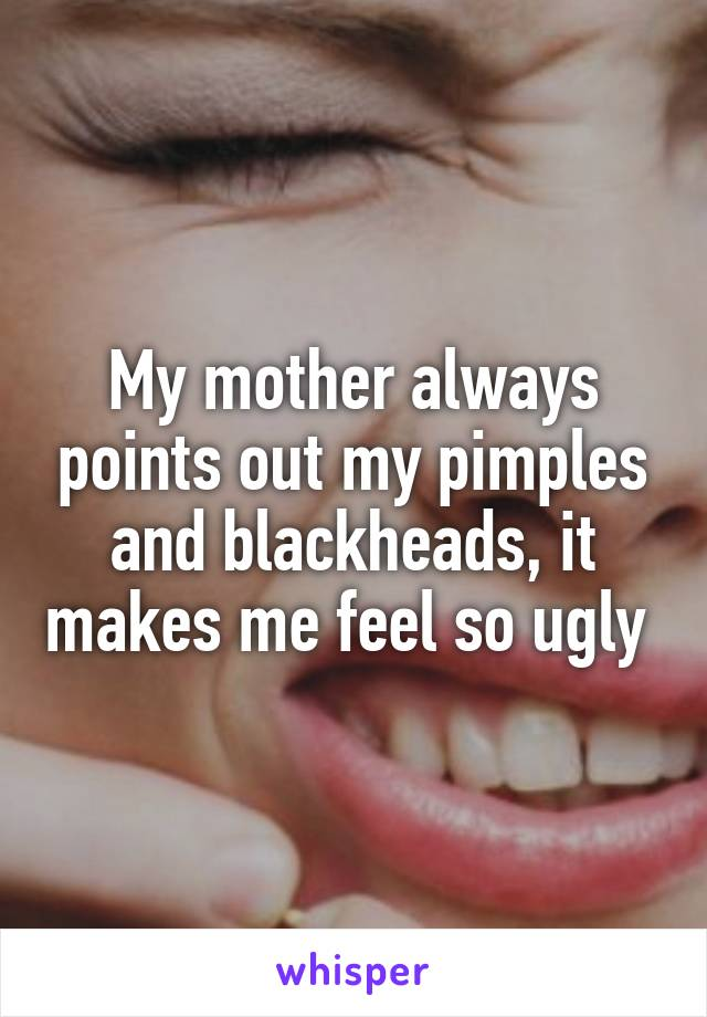 My mother always points out my pimples and blackheads, it makes me feel so ugly