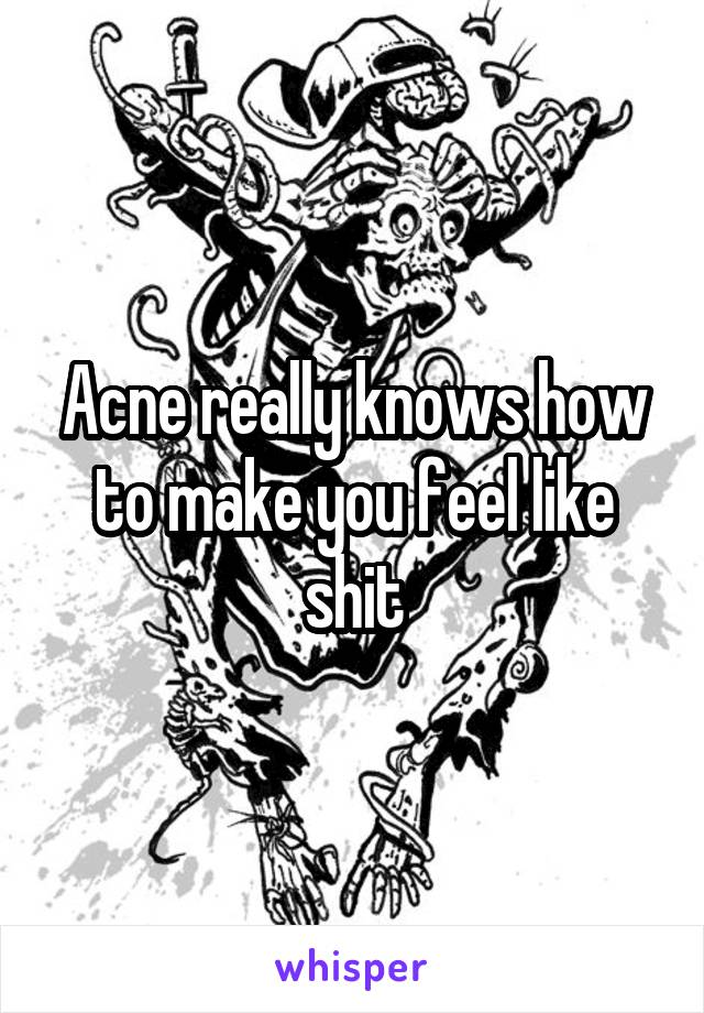 Acne really knows how to make you feel like shit