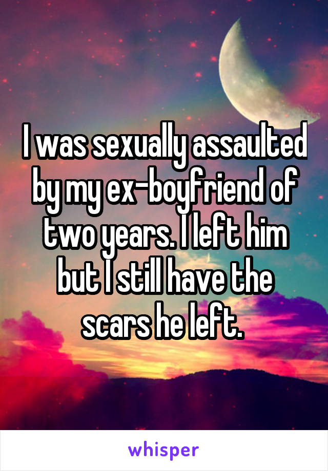 I was sexually assaulted by my ex-boyfriend of two years. I left him but I still have the scars he left.