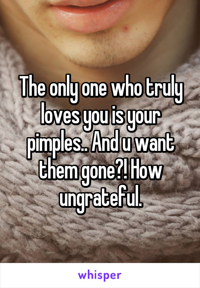 The only one who truly loves you is your pimples.. And u want them gone?! How ungrateful.