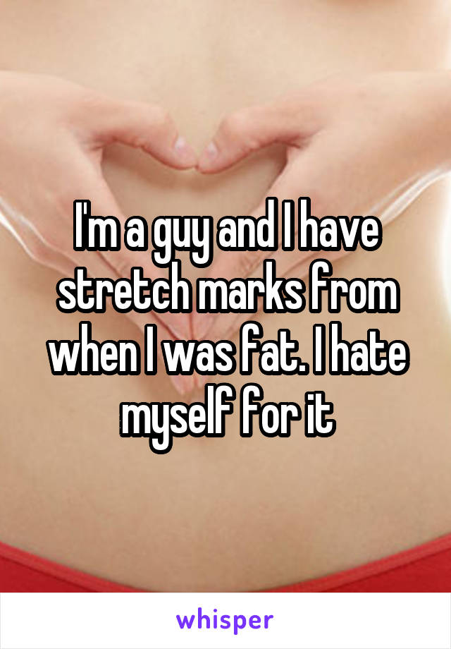 I'm a guy and I have stretch marks from when I was fat. I hate myself for it