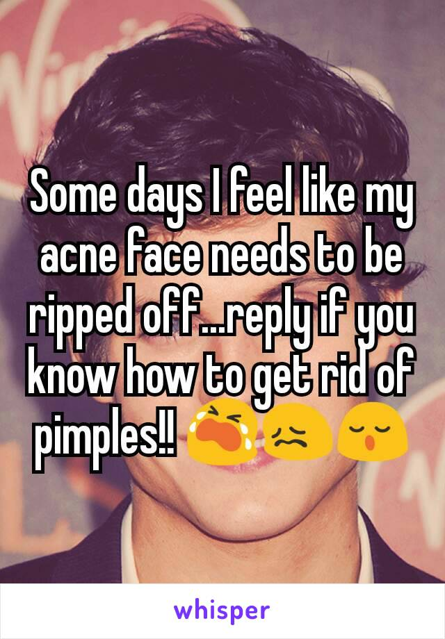 Some days I feel like my acne face needs to be ripped off...reply if you know how to get rid of pimples!! 😭😖😌