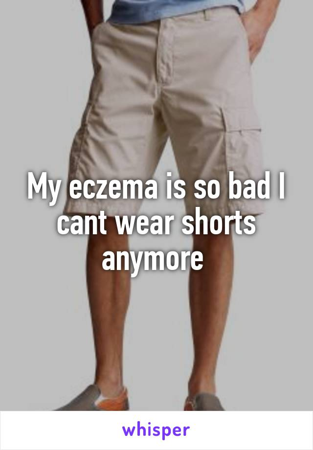 My eczema is so bad I cant wear shorts anymore