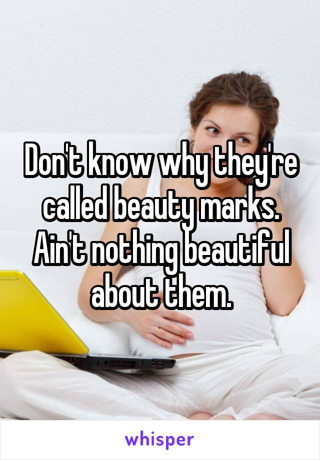 Don't know why they're called beauty marks. Ain't nothing beautiful about them.