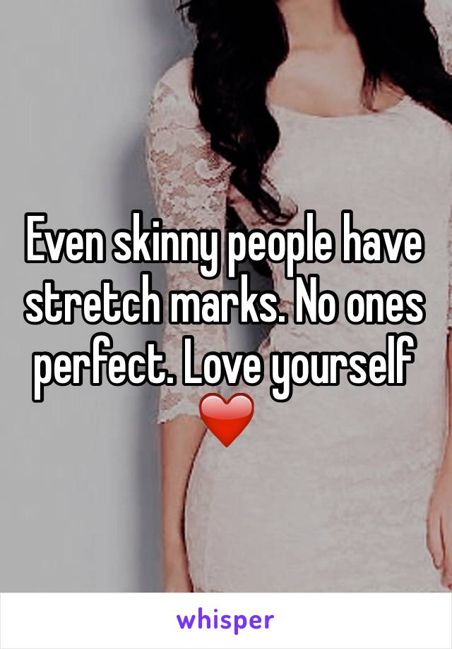 Even skinny people have stretch marks. No ones perfect. Love yourself ❤️