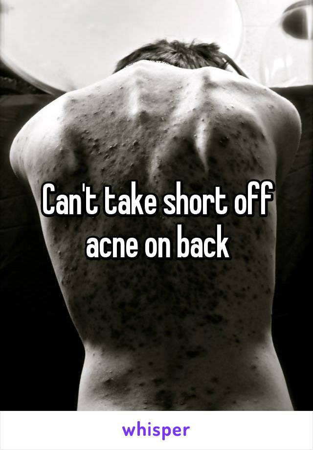 Can't take short off acne on back