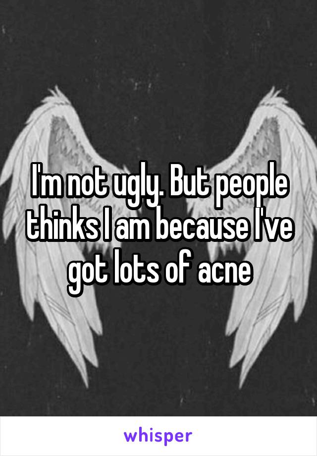 I'm not ugly. But people thinks I am because I've got lots of acne