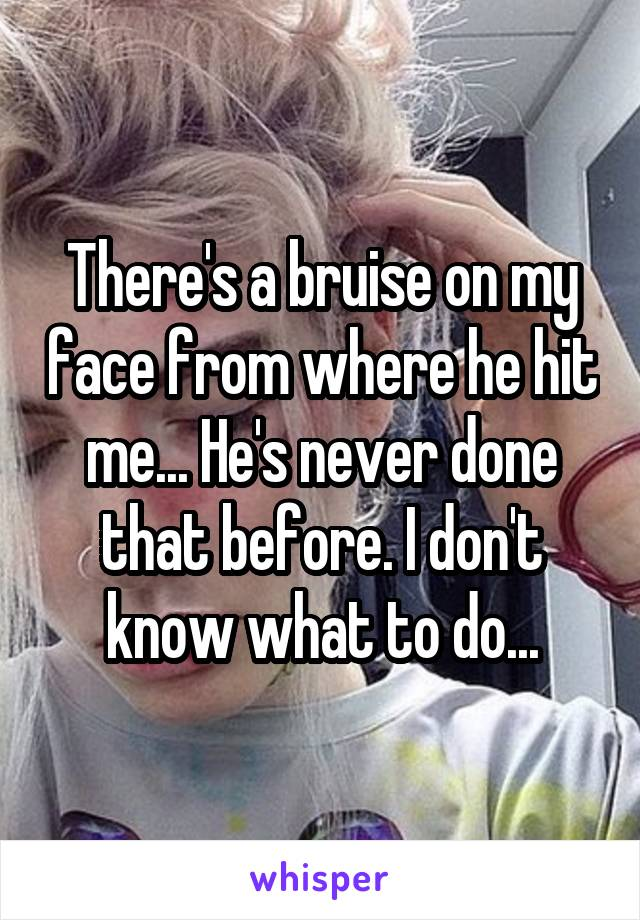 There's a bruise on my face from where he hit me... He's never done that before. I don't know what to do...