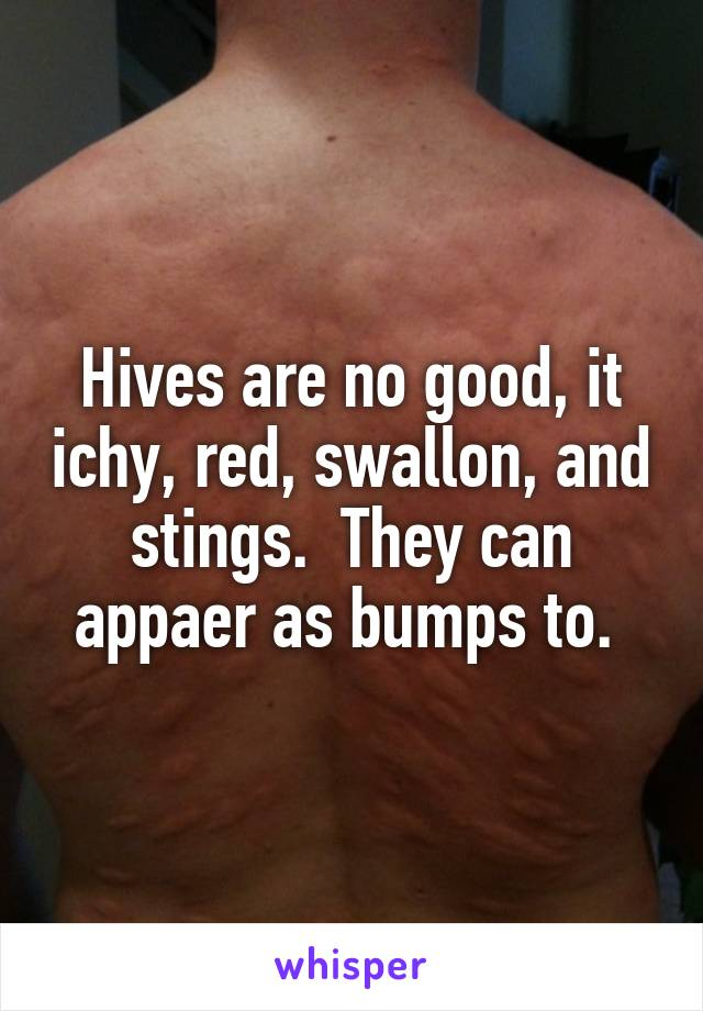 Hives are no good, it ichy, red, swallon, and stings.  They can appaer as bumps to.