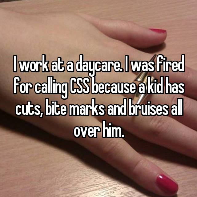 I work at a daycare. I was fired for calling CSS because a kid has cuts, bite marks and bruises all over him.