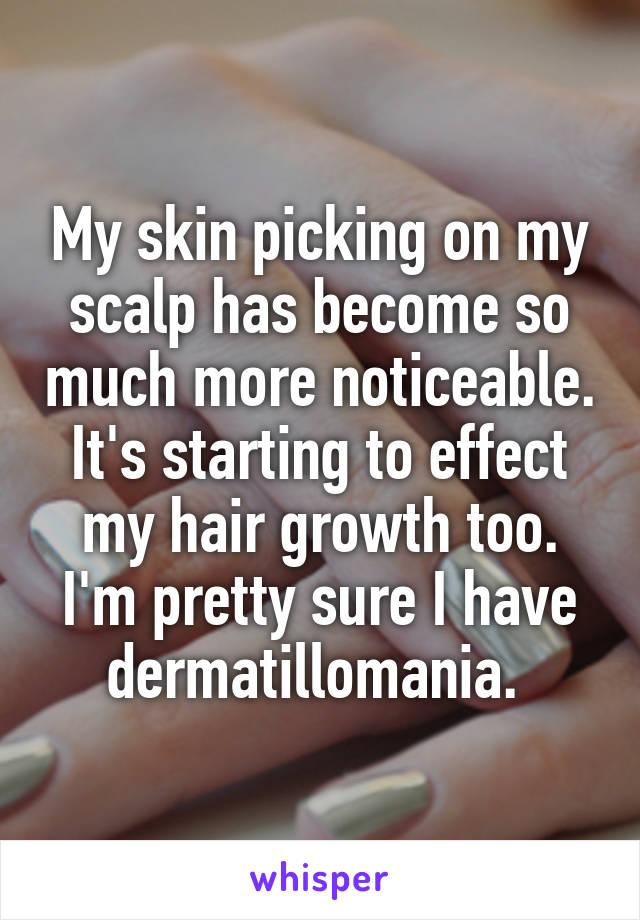 My skin picking on my scalp has become so much more noticeable. It's starting to effect my hair growth too. I'm pretty sure I have dermatillomania.