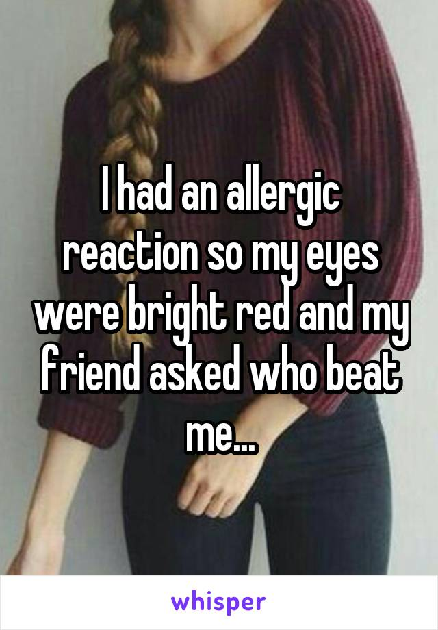 I had an allergic reaction so my eyes were bright red and my friend asked who beat me...