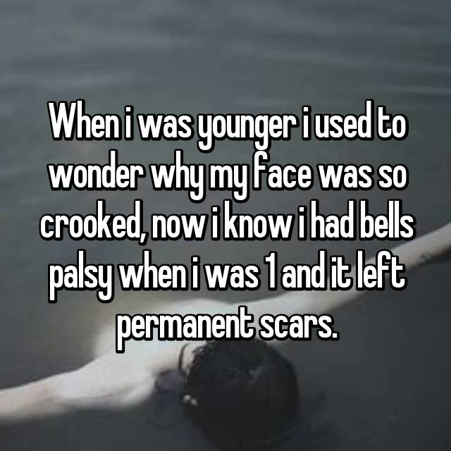 When i was younger i used to wonder why my face was so crooked, now i know i had bells palsy when i was 1 and it left permanent scars.