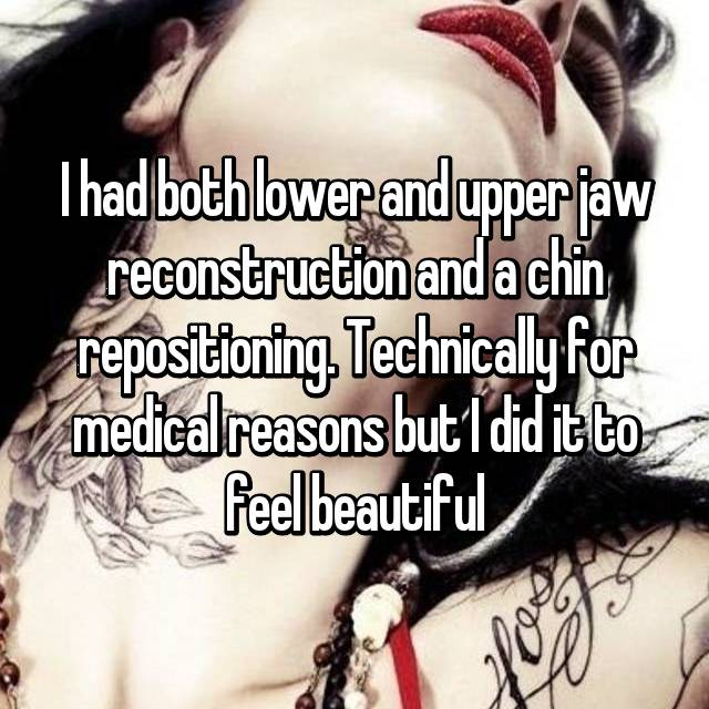 I had both lower and upper jaw reconstruction and a chin repositioning. Technically for medical reasons but I did it to feel beautiful