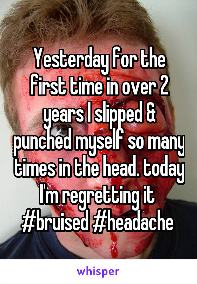 Yesterday for the first time in over 2 years I slipped & punched myself so many times in the head. today I'm regretting it  #bruised #headache