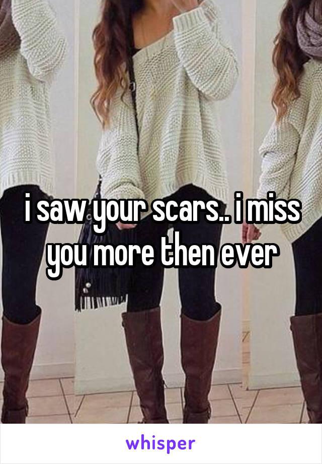 i saw your scars.. i miss you more then ever