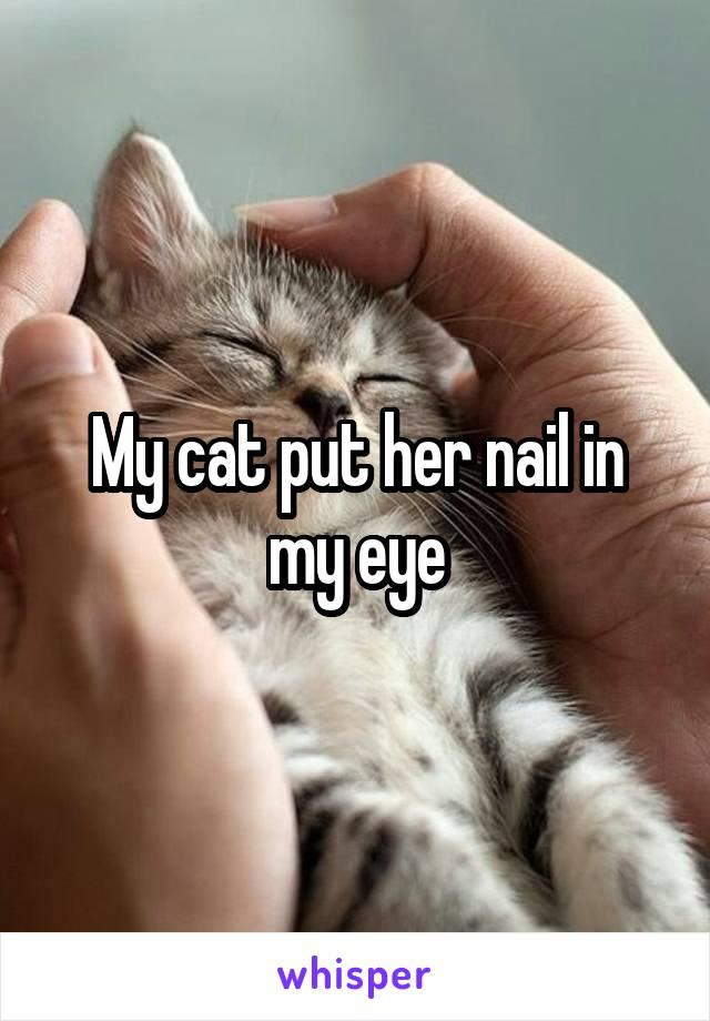 My cat put her nail in my eye