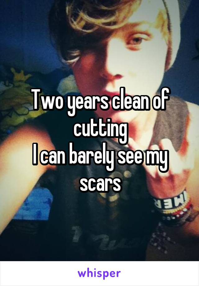 Two years clean of cutting I can barely see my scars