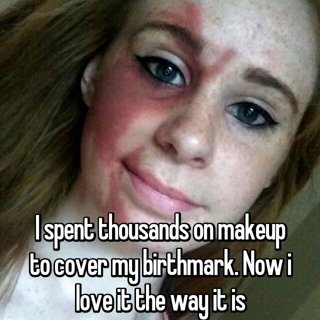 I spent thousands on makeup to cover my birthmark. Now i love it the way it is
