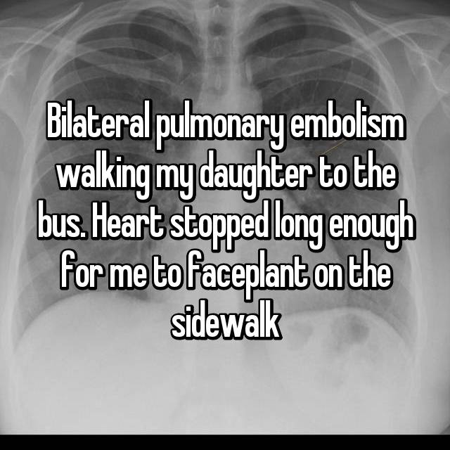 Bilateral pulmonary embolism walking my daughter to the bus. Heart stopped long enough for me to faceplant on the sidewalk