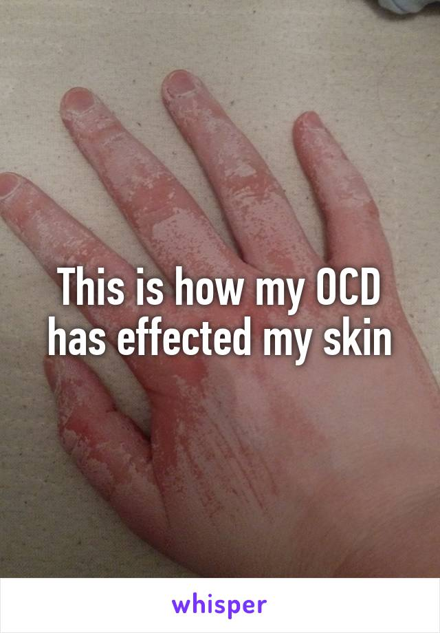 This is how my OCD has effected my skin