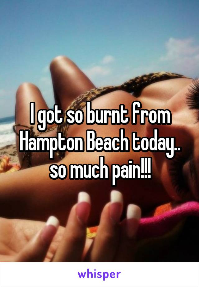 I got so burnt from Hampton Beach today.. so much pain!!!