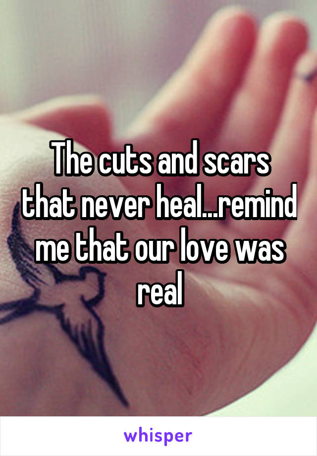 The cuts and scars that never heal...remind me that our love was real