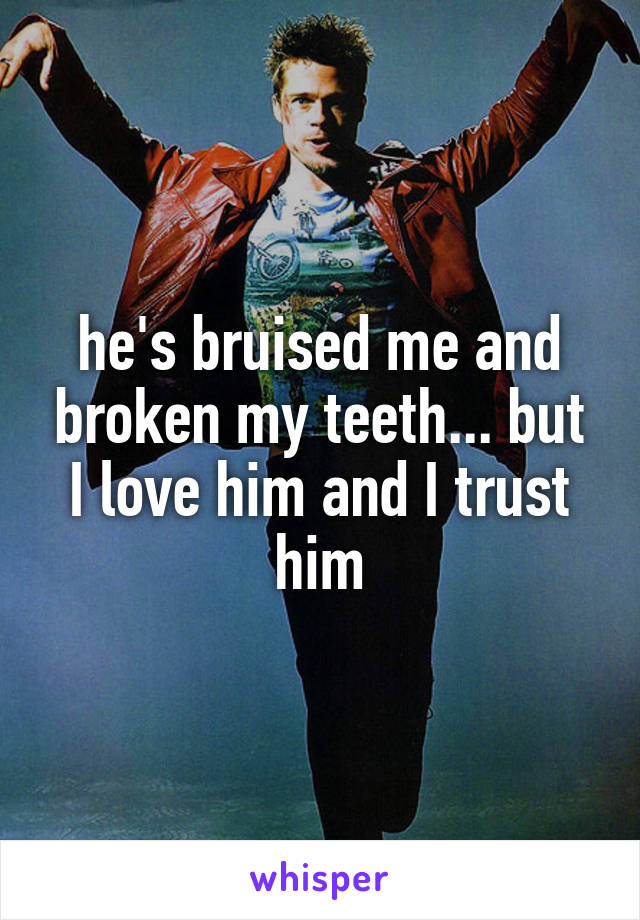 he's bruised me and broken my teeth... but I love him and I trust him