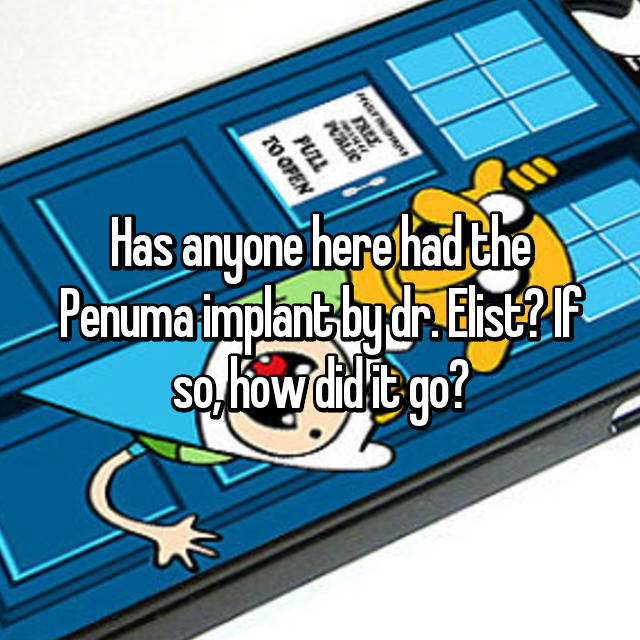 Has anyone here had the Penuma implant by dr  Elist? If so