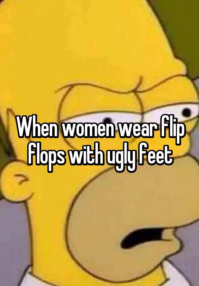 c68328242 When women wear flip flops with ugly feet