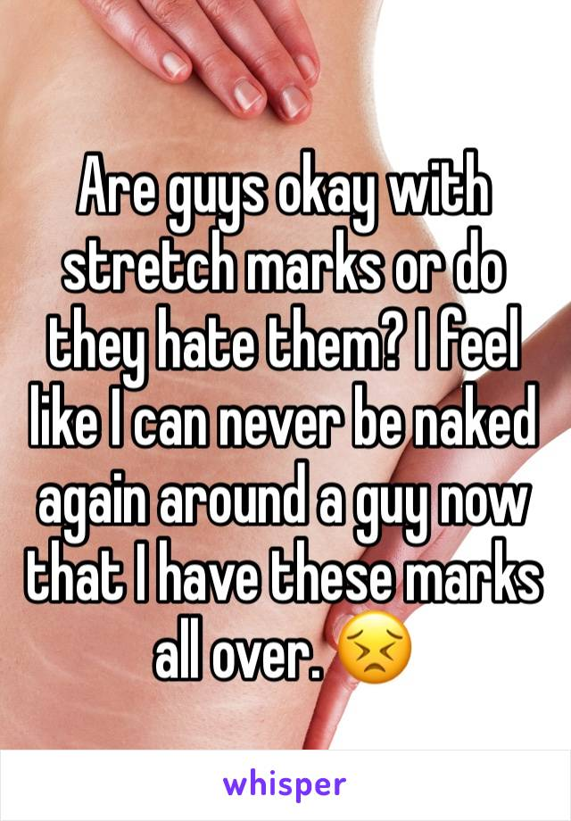 Are guys okay with stretch marks or do they hate them? I feel like I can never be naked again around a guy now that I have these marks all over. 😣
