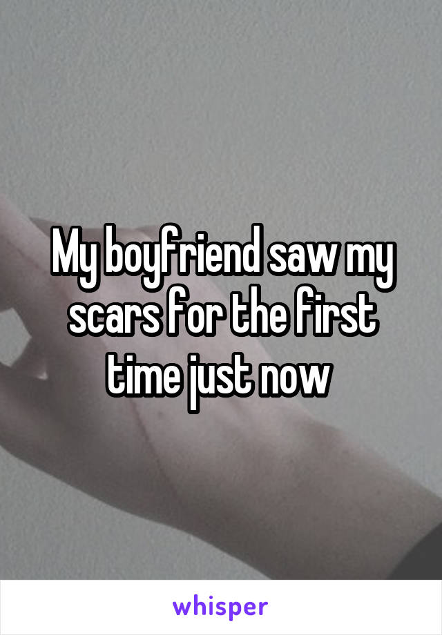 My boyfriend saw my scars for the first time just now