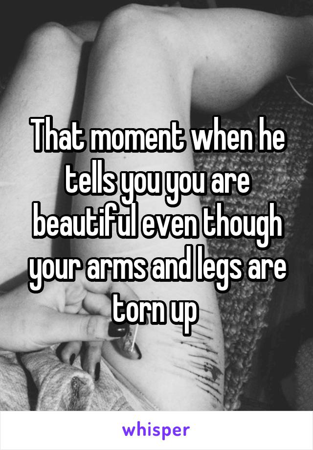 That moment when he tells you you are beautiful even though your arms and legs are torn up
