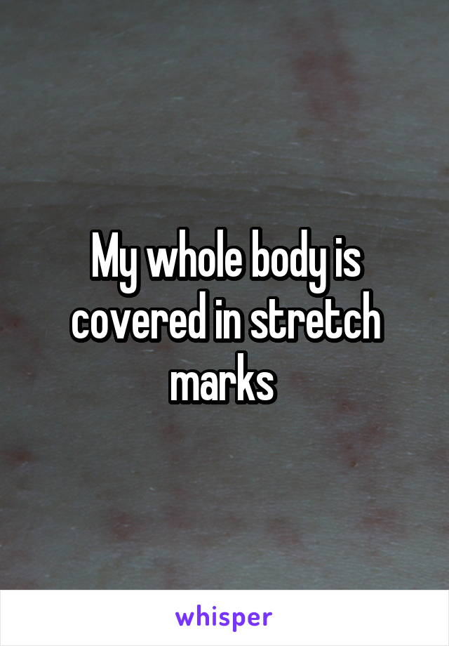 My whole body is covered in stretch marks