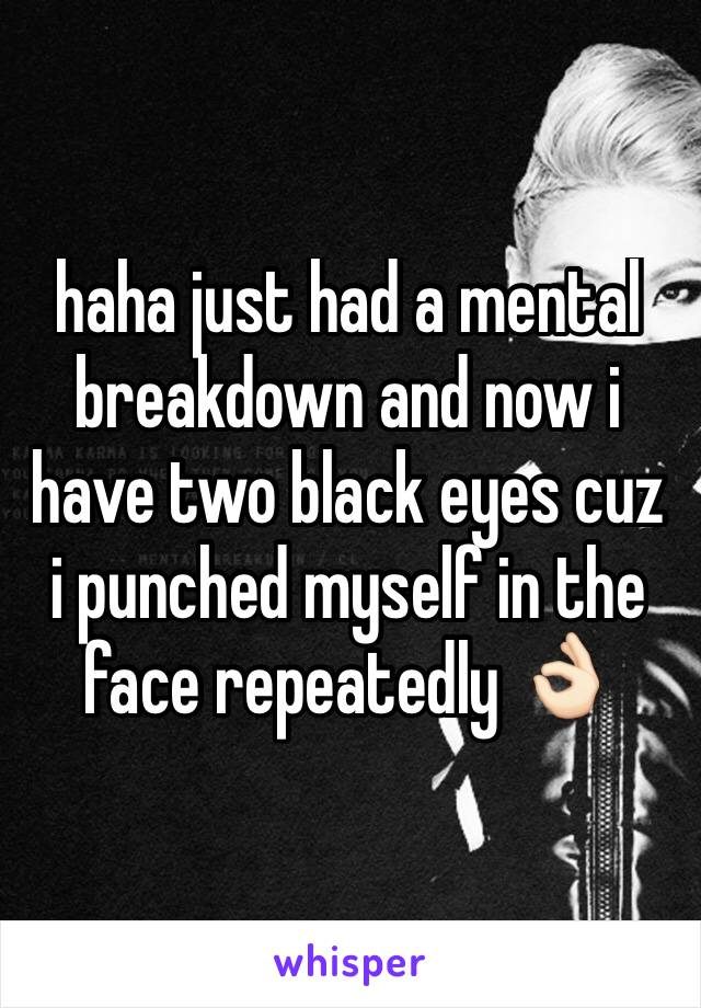 haha just had a mental breakdown and now i have two black eyes cuz i punched myself in the face repeatedly 👌🏻