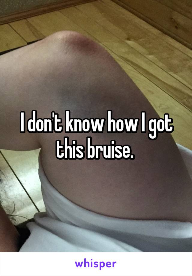 I don't know how I got this bruise.