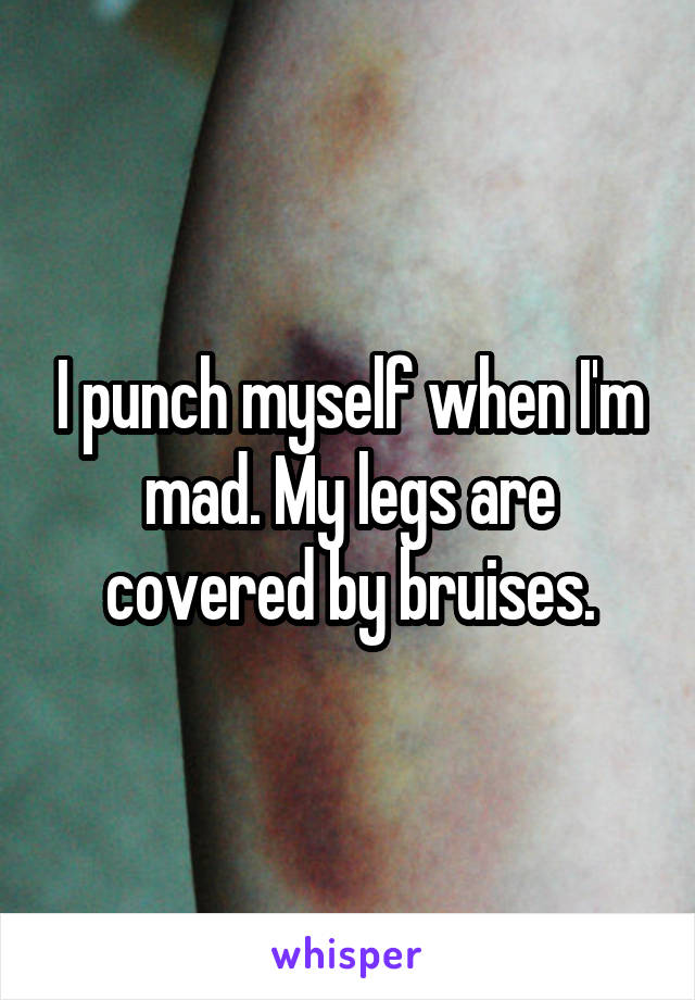 I punch myself when I'm mad. My legs are covered by bruises.