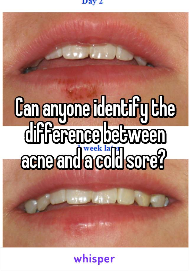 Can anyone identify the difference between acne and a cold sore?