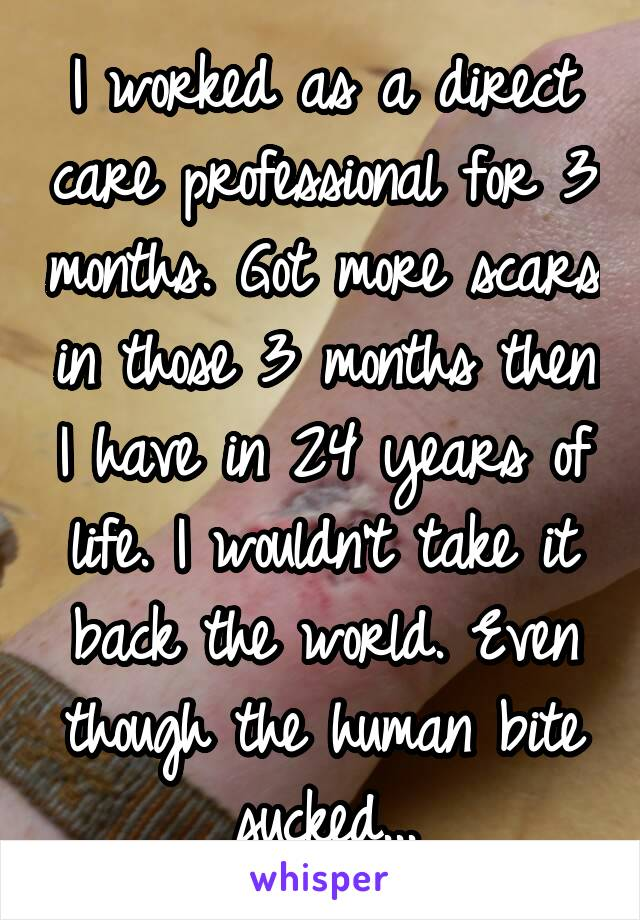 I worked as a direct care professional for 3 months. Got more scars in those 3 months then I have in 24 years of life. I wouldn't take it back the world. Even though the human bite sucked...