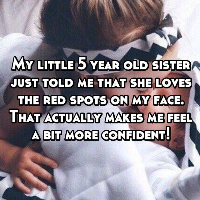 My little 5 year old sister just told me that she loves the red spots on my face. That actually makes me feel a bit more confident!