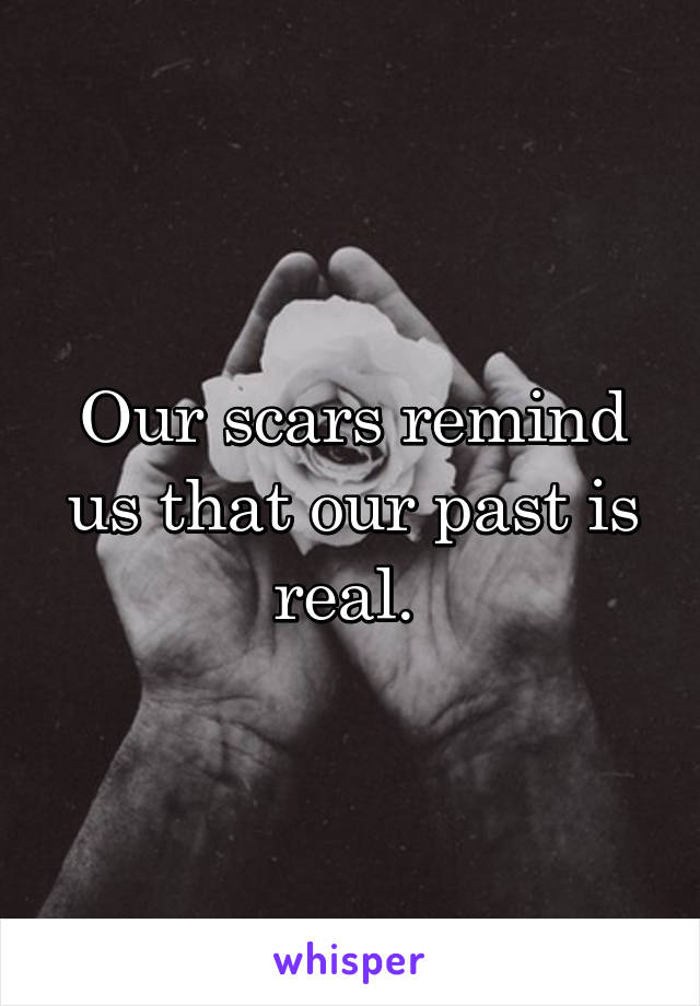 Our scars remind us that our past is real.